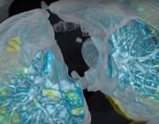 Her er hvad covid-19 kan gøre ved dine lunger